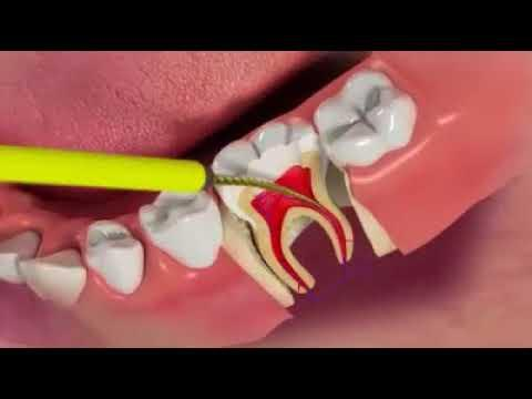Embedded thumbnail for Endodontics