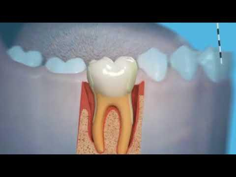 Embedded thumbnail for Periodontologji