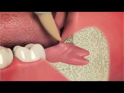 Embedded thumbnail for Oral Surgeries